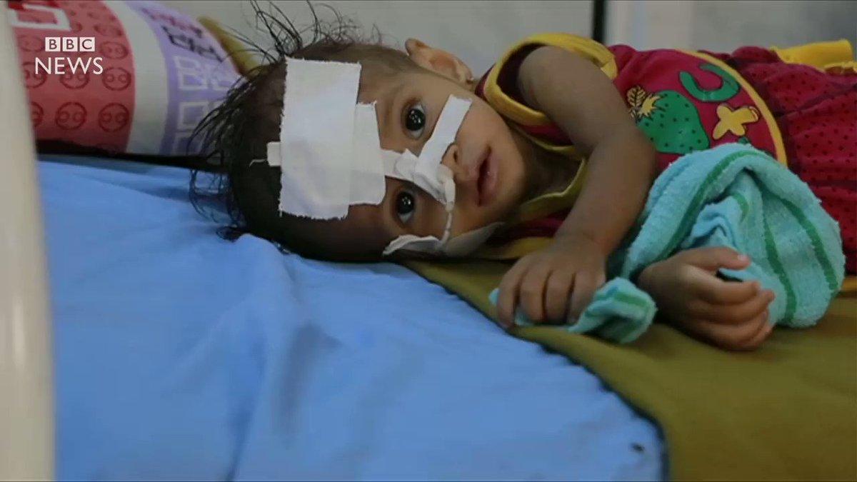 How children are starving in #Yemen's war .via @BBCNews #900Days_ForgottenWar https://t.co/rF5NL8VUZ4