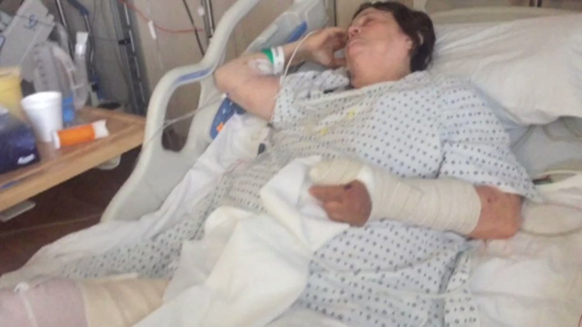 Exclusive: 71-Year-Old Victim Of Kearny Hit-And-Run Speaks ToCBS2