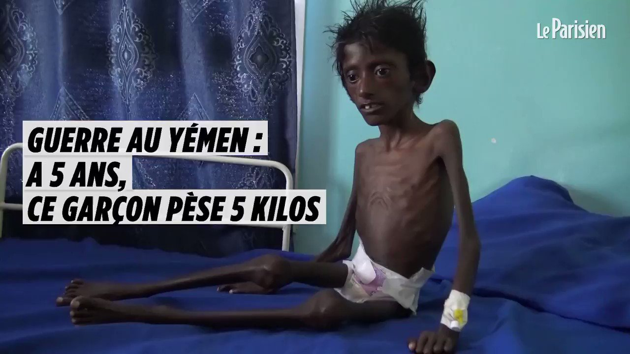 Un des visages de la guerre au Yémen. À cinq ans, Abdel souffre de malnutrition aigüe, respire difficilement et pèse 5 kilos : https://t.co/puyj8YWLtV