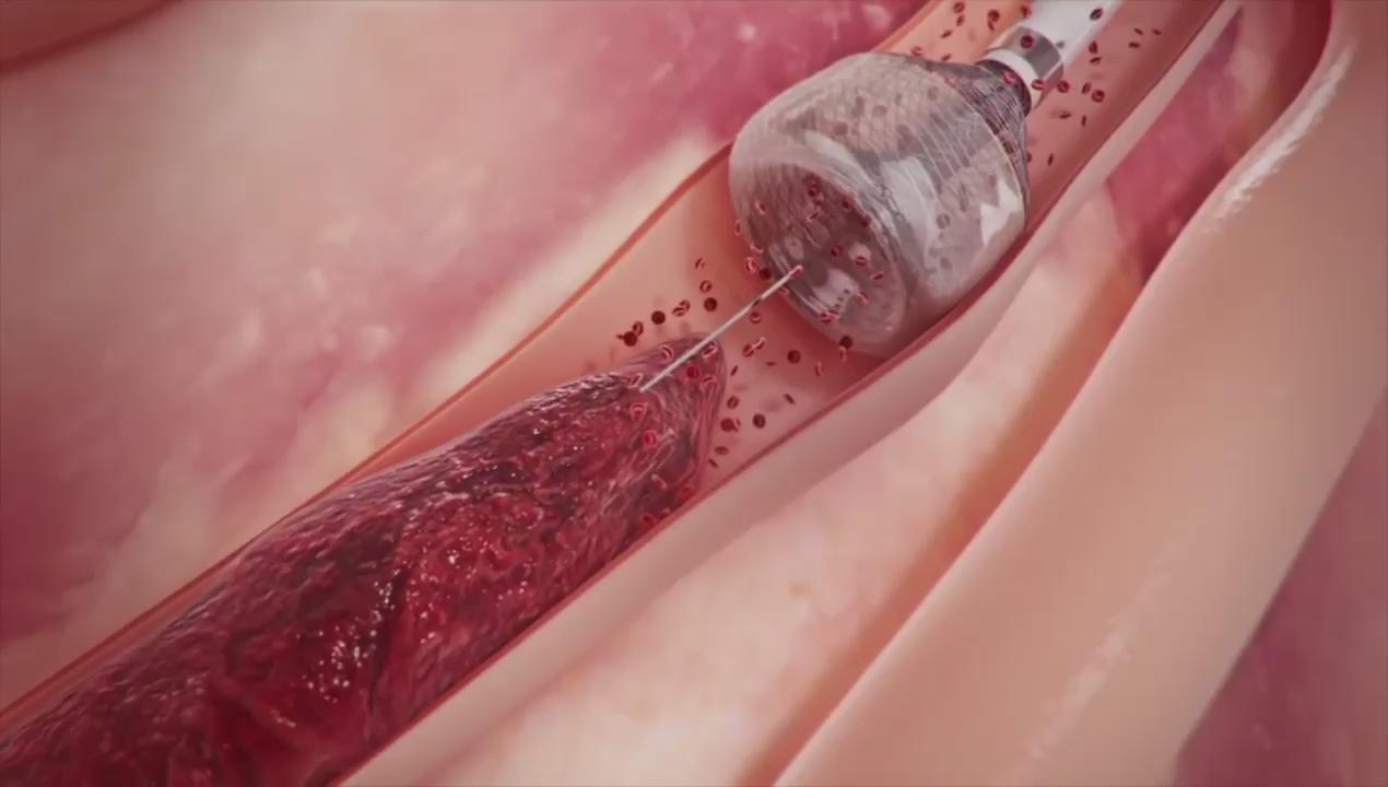طريقة إزالة تجلط الدم في الشرايين 💉 https://t.co/TCX3IwchHa