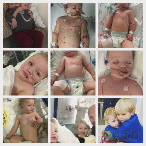The 2 weeks of hell we've just had cos of Meningitis. Sami lucky due to amazing people @GreatOrmondSt