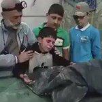 طفل سوري يودع شقيقه الذي قضى مجزرة  #حلب مشـهد يبكي الحجر و يدمي القلوب  #حلب_تحترق https://t.co/5aqI7E9TXK