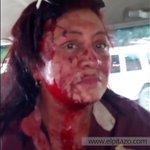 ¡EL HOMBRE Y LA MUJER NUEVOS DEL SOCIALISMO! Profesora fue brutalmente golpeada por jefa en Unellez Apure #Venezuela https://t.co/76btLaz36a