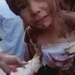 الطيران الروسي يقصف حي الوعر في حمص بقنابل النابلم الحارقة ويحرق جسد طفل حمصي والاهالي يبردون جسده بالطين https://t.co/nRsQwAaXty