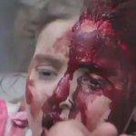 EY İNSANLIK NEREDESİN??? #AleppoUnderAttack https://t.co/cLn8WKAcVw
