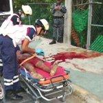 Hombre fue atacado por cocodrilo al quedarse dormido en Av Portillo x Residencial Puerta del Mar @giselanis15 @notaroja_mante @CGNoticias2 https://t.co/sgP71lT2Rp