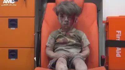 الطفل عمران الذي دفعت المعارضة السورية المال لوالده ، والذي بكت عليه مذيعة السي إن إن . https://t.co/UimUoptnmE