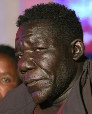 I actually think he's handsome... Wow. '@JoziLamla: The latest winner of Zimbabwe's Mr Ugly pageant! http://t.co/ritZA2vV'