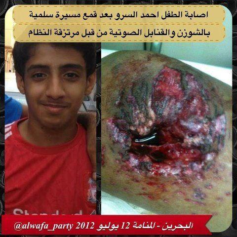 اصابة الطفل أحمد السرو برجله #bahrain http://t.co/FEcwZ8q6