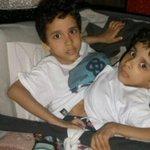 Morre Arthur, um dos gêmeos siameses separados em Goiânia http://t.co/pzff2rQl8h http://t.co/vYlmYKCRqF