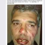 """""""En la hora"""" denuncia agresión de DT de Rocha a periodista Gustavo Rodriguez. Su cara quedó desfigurada. @Subrayado http://t.co/pdE8fBR7a5"""