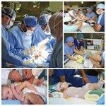 نجاح فصل التوائم السيامي اليمني بمدينة الملك عبد العزيز الطبية بعد جراحة استمرت 10ساعات ونقلهما للعناية #صباح_العربية http://t.co/ApoN6U5sFr
