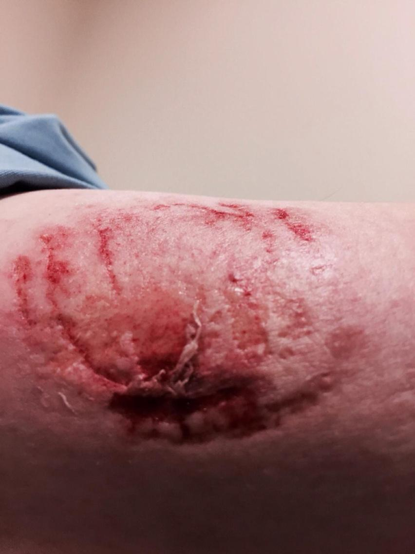 .@OPSEU calls for stiffer penalties for inmates who assault staff, after big jump in assaults like this #onpoli http://t.co/ZA4L291Kfl