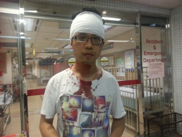 剛剛在旺角廣華醫院急診室見到被打到流血的抗議者,他說被警察警棍多下毆打受傷! http://t.co/MMz9DGNxYe
