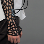 This 3D printed cast can heal your bones 40-80% faster http://t.co/3Wc6VWhUEe