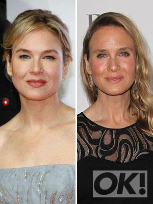 What has Renee Zellweger done to her face? Actress is unrecognisable on the red carpet: