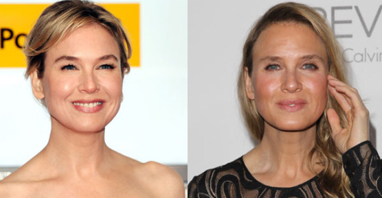 Renee Zellweger's shocking makeover: What has she done to her face?