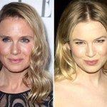 Heres why everyones talking about Bridget Jones star Renee Zellweger http://t.co/BqlRDB6JI0 http://t.co/vGJ4OFAROW #face #lips #surgery