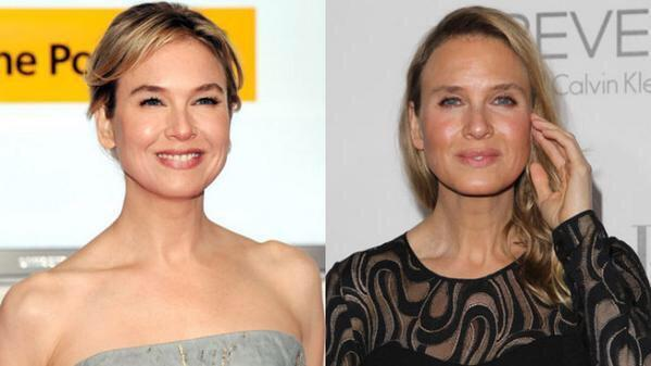 What the actual hell has Renee Zellweger done to herself! Is that even her!!  #ReneeZellweger http://t.co/qvsVmfTSmH