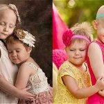 RT @ELTIEMPO: El poder de las imágenes: el antes y el después del cáncer infantil http://t.co/ZdTxwgJ3ST http://t.co/IH51hMCbGl
