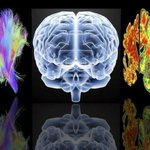 RT @BBCNews: GPs to be paid £55 for each dementia diagnosis http://t.co/NdInu54pEa http://t.co/hnLSpu1DaH