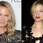 Renee Zellweger has spoken out about HER WHOLE NEW FACE http://t.co/folOhVLXEj http://t.co/1A9VusPgfZ