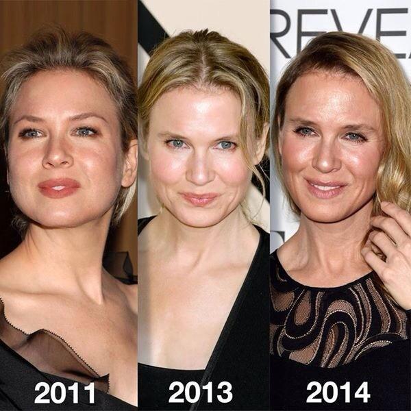 Quién eres y qué has hecho con Renée Zellweger http://t.co/x9CTR5CRAS