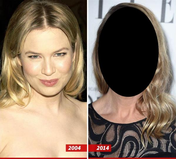 Renee Zellweger's face is looking... different. WAYYYYY DIFFERENT.