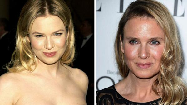 Renee Zellweger: let's face it, something's different...