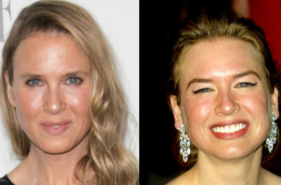 Check out Renee Zellweger's changing face through the years..