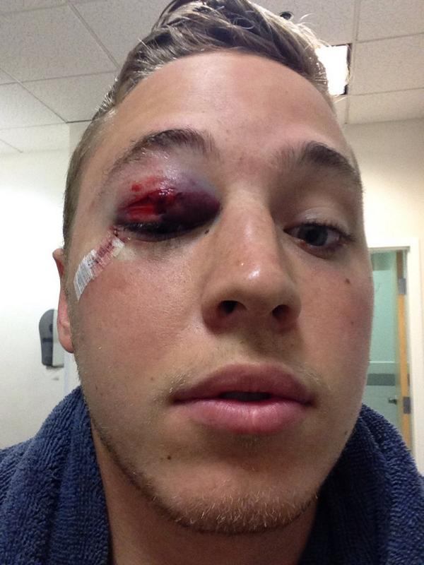 Thank you everyone for checking in on me. Luckily the skate just missed my eye. Really appreciate all the LOVE. http://t.co/5PpcDzO6nn