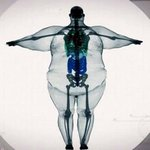 """Nobody is """"big-boned"""". Please, take care of yourselves. http://t.co/RPWAyNdsZz"""