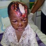 Will 4year old Omonigho Abraham bitten by dogs in Lagos get as much donations as GEJ?#SaveOmonighoAbraham http://t.co/rVjYJPZLKm @ogundamisi