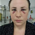 Was this Calgary woman a victim of the knockout game? http://t.co/lfoRos9hUi #yyc http://t.co/9FrmSBXDHX