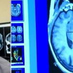 #Toronto researchers close to discovering cause of dementia http://t.co/XJFdQZX5u0 http://t.co/8sCir1HI82