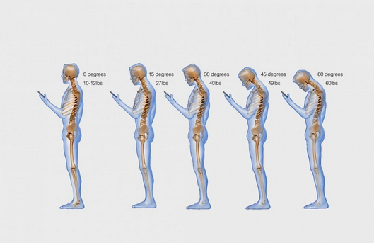 'Text neck' is becoming an 'epidemic' and could wreck your spine http://t.co/Y6047cXQqS http://t.co/zyENWahxkd