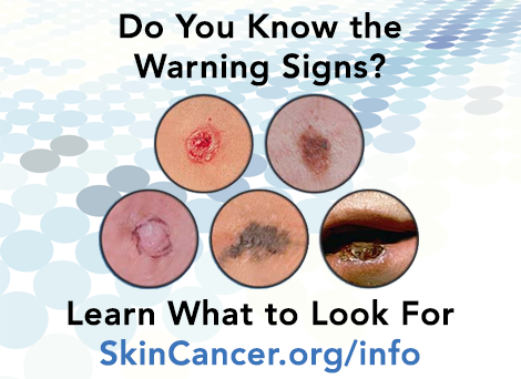Early detection is critical in treating #SkinCancer. Learn how to identify its warning signs http://t.co/ZLj60MVxSD http://t.co/jiM5rwHACx