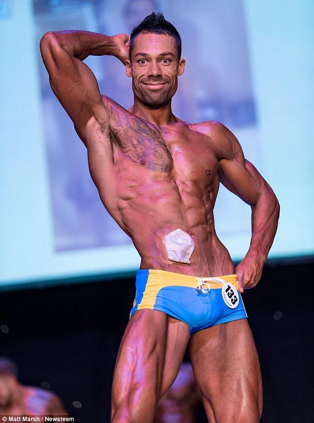 Bodybuilder With Bowel Disease Wins First Tournament While Wearing Colostomy Bag Http