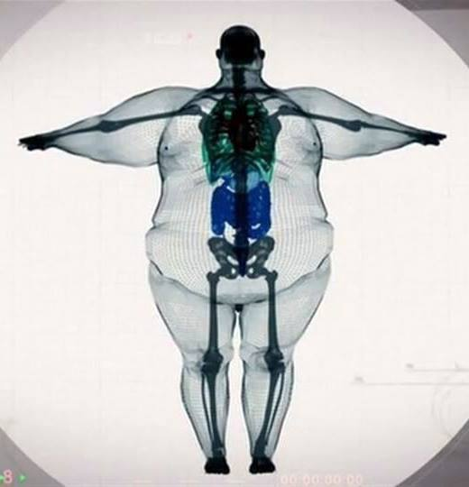 Nobody is big-boned. Please, take care of yourselves. http://t.co/iONjYyyQZL