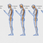 """""""Text neck"""" is becoming an """"epidemic"""" and could wreck your spine http://t.co/kx8mmqqSft http://t.co/v1m27LluTG"""