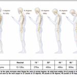 【怖い】スマホ前傾姿勢は脊椎にすさまじい負担が… http://t.co/TtOaDRcL94 角度によっては、8歳児を背負うのと同等の負担が脊椎にかかる http://t.co/b4LsMzaIs2