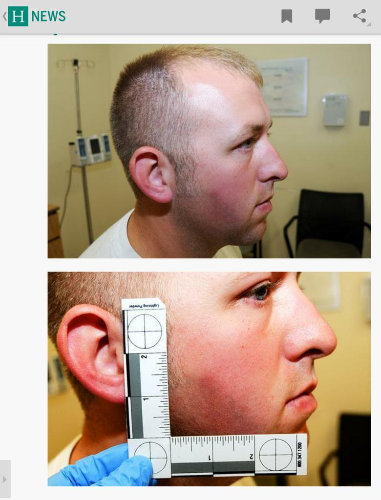 I'm looking at 4 Photos Of #DarrenWilson's Injuries... I can't see any injuries. #Ferguson  http://t.co/MkhUpQgKKz . http://t.co/OhGepqPQBo