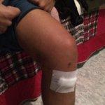 Vamos Jimbo hermano recupérate pronto!! 💪💪 http://t.co/WpnbXmO5fV