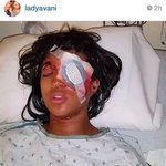 Pregnant #Ferguson woman loses eye after police shoot bean bag at her http://t.co/rS4In7htmH #NotOneDime #BlackFriday http://t.co/aILPAag1nZ