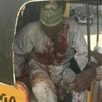PHOTO: one of the survivors making his way to the hospital for treatment after the Kano bombings today http://t.co/jKzhveZhSu
