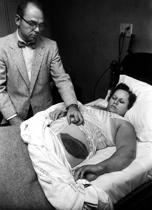 60 years ago today, a meteorite hit Ann Hodges http://t.co/FfRPqPzegH