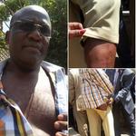 PICS: Senator Muthama after the fight http://t.co/Iq4X7ttLAP
