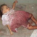 """No podemos olvidar el daño que nos han hecho. Dolor de patria!! #NavidadSangrientaFARC http://t.co/XmZwzsN0yX"""""""