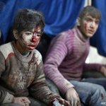بعدسة #AFP صور لجرحى قصف قوات الأسد على مدينة دوما بالغوطة الشرقية بريف #دمشق #سوريا اليوم http://t.co/vByEu8ZGIR