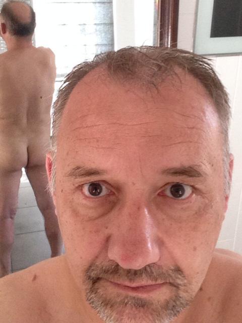 Patch bald facial hair